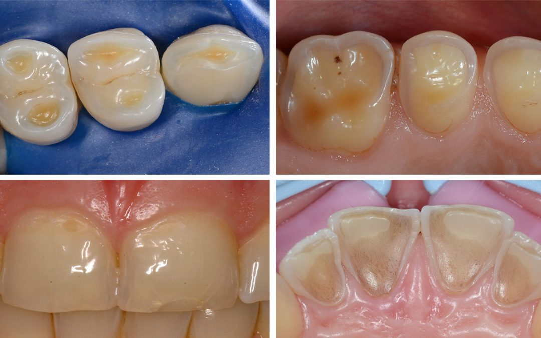 Consensus report of the European Federation of Conservative Dentistry erosive tooth wear_diagnosis and management